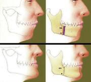 Как исправить прикус хирургическим путем