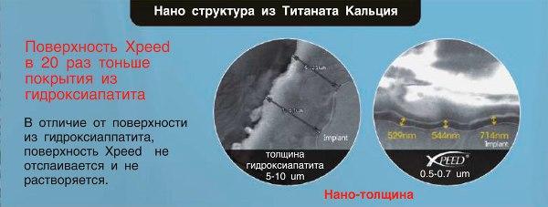 Anyridge имплантаты официальный сайт