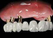 Отзывы о базальной имплантации зубов