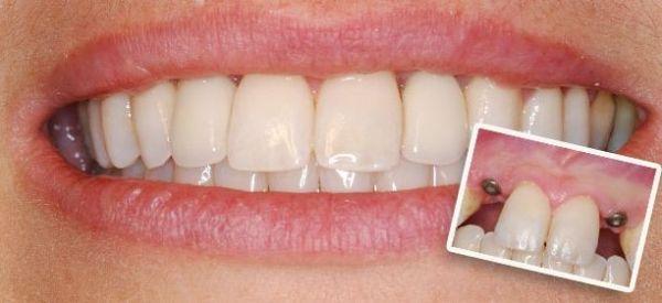Основные требования к безоперационной имплантации зубов
