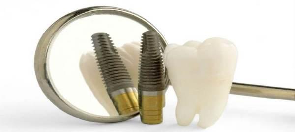 Преимущества и недостатки бескровной имплантации зубов