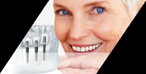 Преимущества и недостатки двухэтапной имплантации зубов
