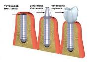 Хирургический этап имплантации зубов