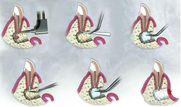 Метод резекции верхушки корня зуба