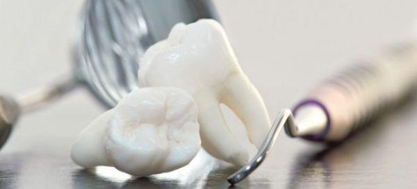 Гемисекция зуба это