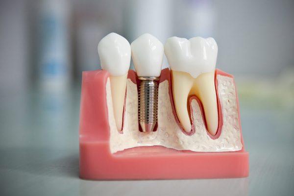 Как недорого восстановить зубы с помощью имплантации