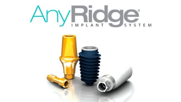 Порядок установки имплантатов Anyridge