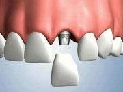 Отзывы об имплантах зубов - вред и противопоказания