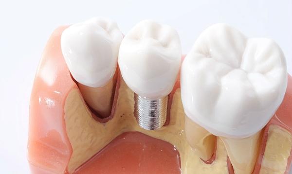 Какие импланты зубов лучше