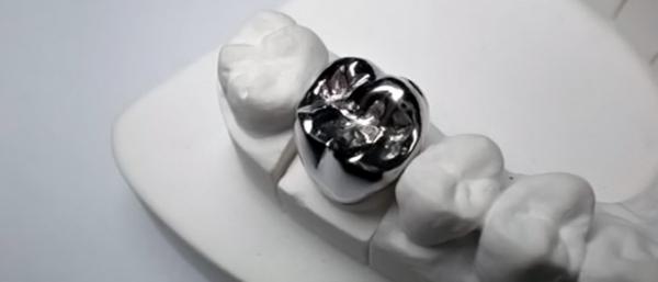 Способы производства стальных коронок на зубы
