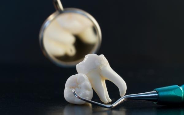 Может ли после удаления зуба остаться осколок