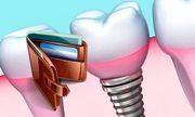 Цена одноэтапной имплантации зубов