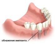 Возможные осложнения после имплантации зубов