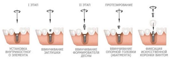 Отзывы о двухэтапной имплантации зубов