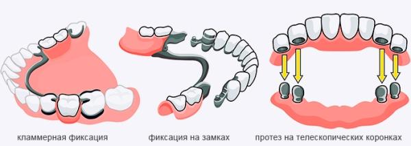 Отзывы о полиуретановом зубном протезе
