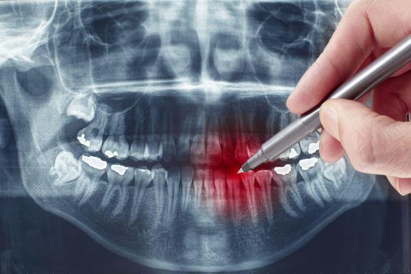 Простое и сложное удаление зуба