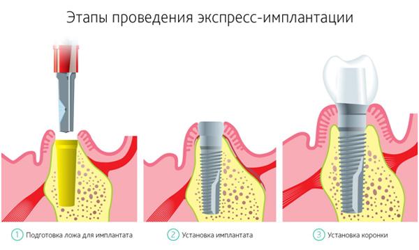 Провести экспресс имплантацию недорого