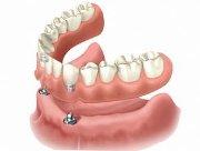Съемный покрывной зубной протез