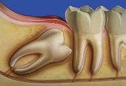 После сложного удаления зуба мудрости
