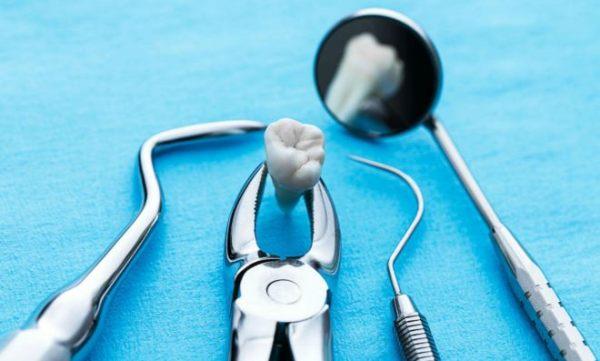 Сложное удаление зуба мудрости на верхней челюсти