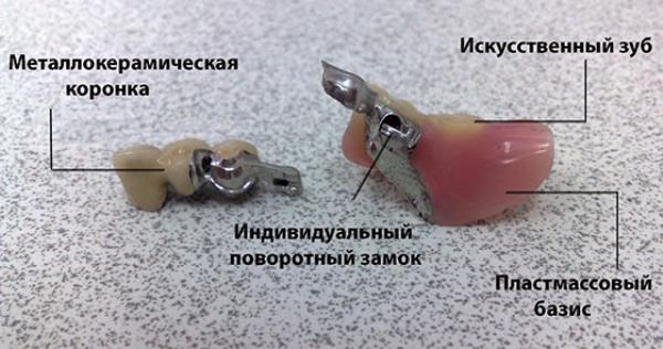 Срок изготовления бюгельного протеза
