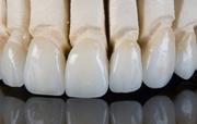 Особенности циркониевых коронок на епредние зубы