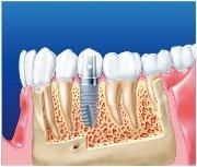 Проведение трансгингивальной имплантации зубов