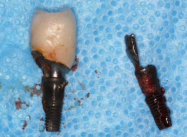 Удаление импланта зуба отзывы