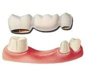 Преимущества зубных мостов