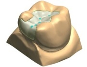 Восстановление зуба микропротезом