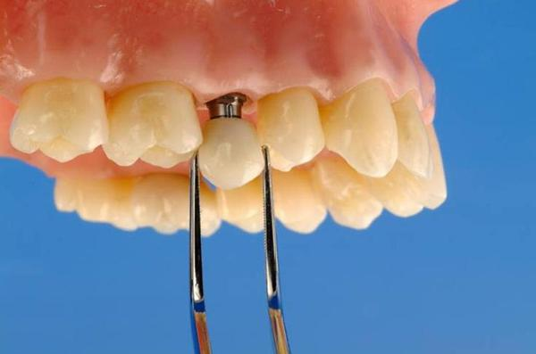 Какими способами изготавливаются временные коронки на имплант