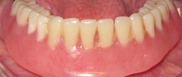 Зубные протезы на присосках отзывы