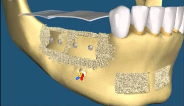 Атрофия альвеолярного отростка нижней челюсти