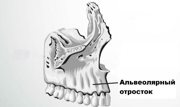 Степени атрофии альвеолярного отростка