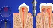 Особенности экспресс имплантации зубов