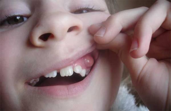 Экзостоз после удаления зуба фото
