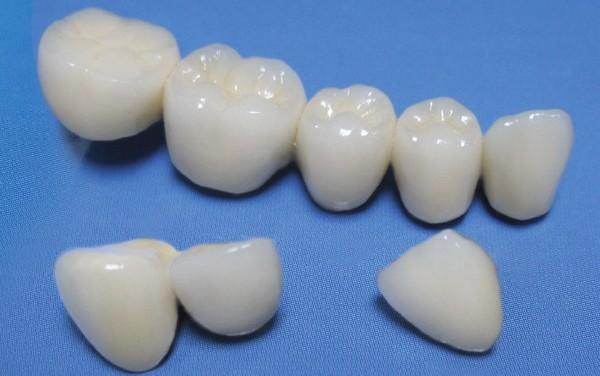 Установка фарфоровых коронок на передние зубы