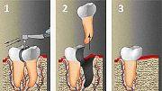Показания к гемисекции зуба