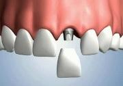 Имплантация зубов недорого