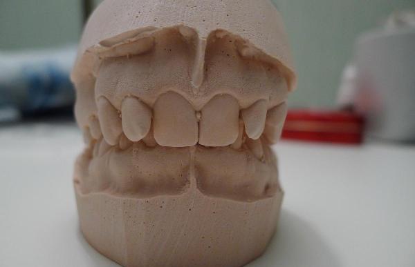 Основы изготовления слепков зубов