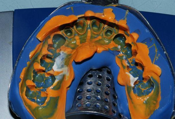 Слепок зубов для брекетов цена