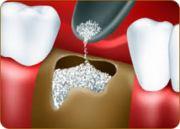 Виды костного материала в стоматологии