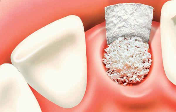 Костный материал в стоматологии применение