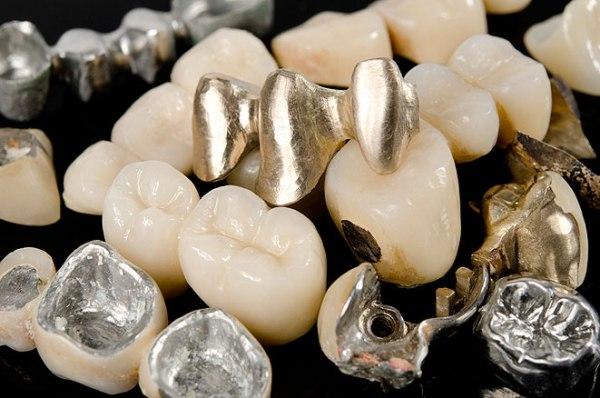 Какие металлы применяются в стоматологии
