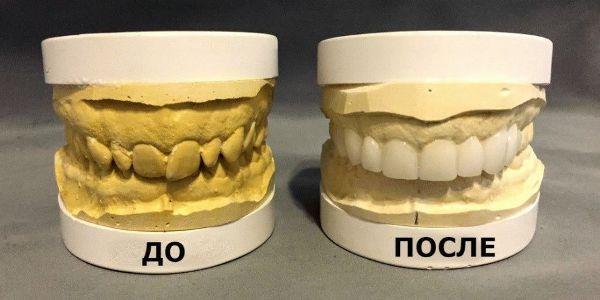 Как делают слепок зубов для коронки