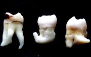 Показания к сложному удалению зуба мудрости