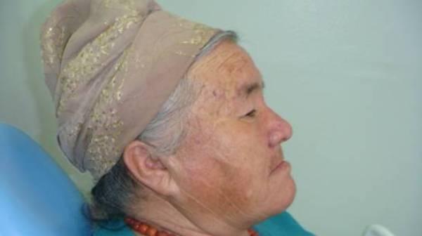 Методики лечения старческой прогении