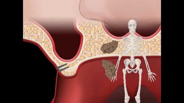 Лечение атрофии альвеолярного отростка на верхней челюсти