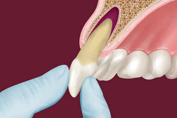 Реплантация зуба показания и противопоказания