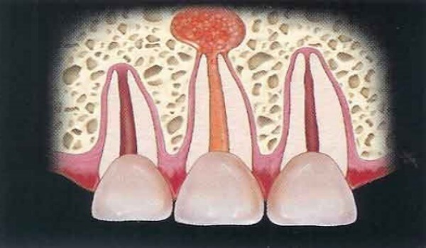 Цистэктомия кисты зуба